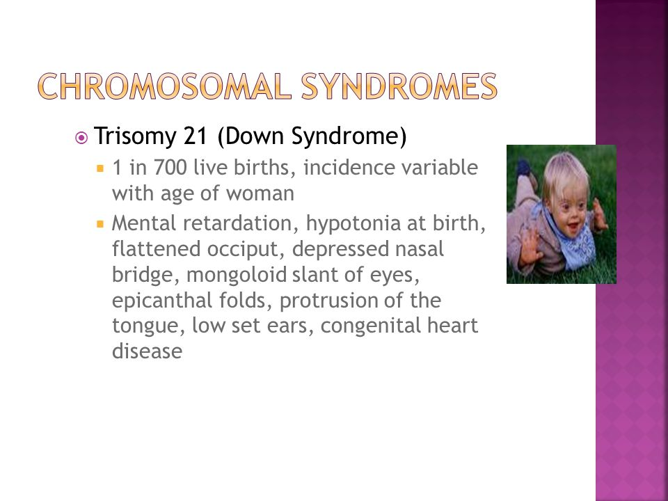  Trisomy 21 (Down Syndrome)  1 in 700 live births, incidence variable with age of woman  Mental retardation, hypotonia at birth, flattened occiput, depressed nasal bridge, mongoloid slant of eyes, epicanthal folds, protrusion of the tongue, low set ears, congenital heart disease