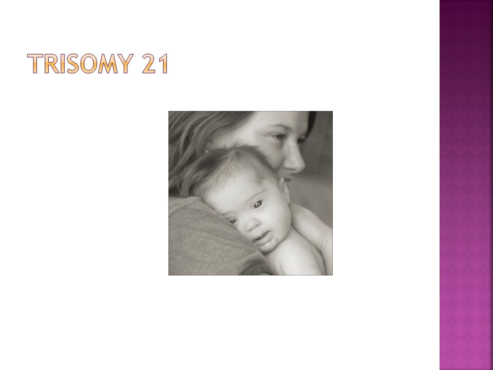  Trisomy 18  1 in 3000 live births  Mental retardation, severe hypotonia, low set ears, ptosis (drooping of eyelids), syndactyly (webbing of fingers), congenital heart defects, single umbilical artery, third and fourth fingers overlapped by second and fifth fingers, most do not survive beyond early infancy
