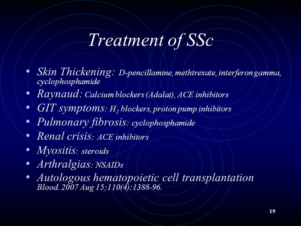 19 Treatment of SSc Skin Thickening: D-pencillamine, methtrexate, interferon gamma, cyclophosphamide Raynaud: Calcium blockers (Adalat), ACE inhibitor