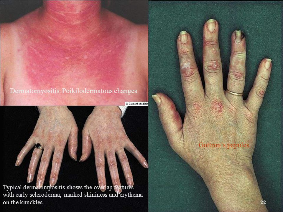 22 Dermatomyositis. Poikilodermatous changes Gottron's papules. Typical dermatomyositis shows the overlap features with early scleroderma, marked shin