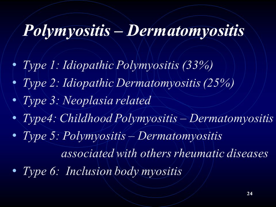 24 Polymyositis – Dermatomyositis Type 1: Idiopathic Polymyositis (33%) Type 2: Idiopathic Dermatomyositis (25%) Type 3: Neoplasia related Type4: Childhood Polymyositis – Dermatomyositis Type 5: Polymyositis – Dermatomyositis associated with others rheumatic diseases Type 6: Inclusion body myositis