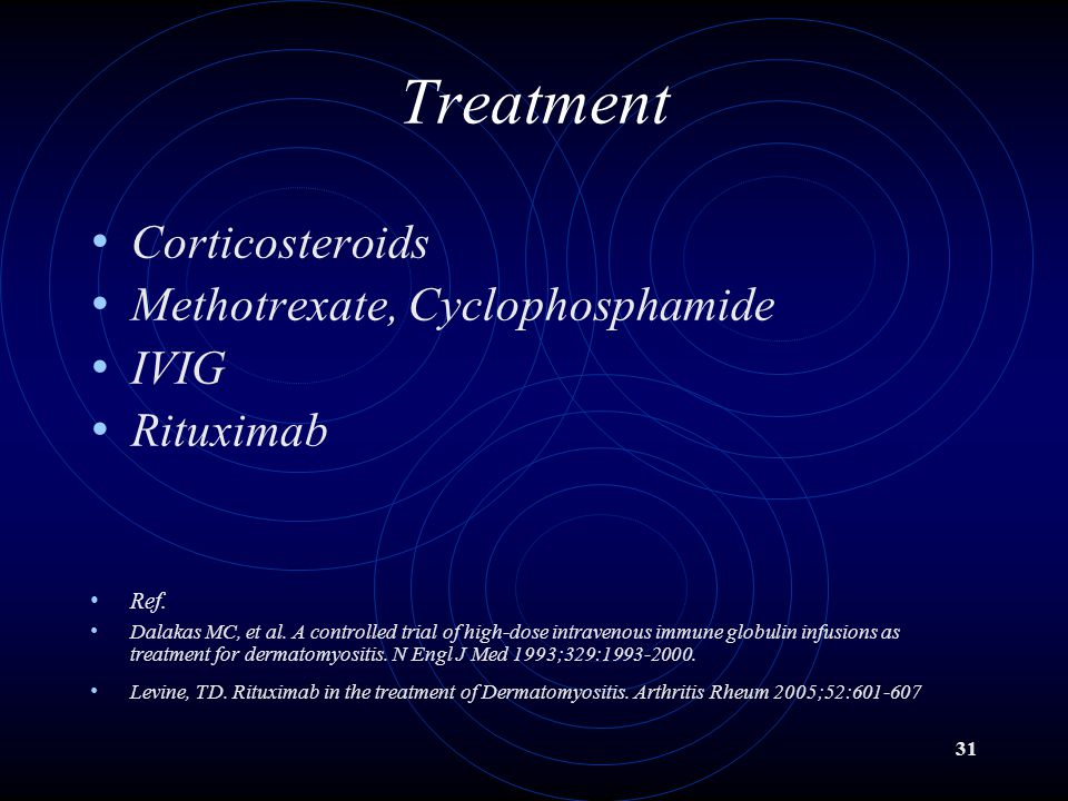 31 Treatment Corticosteroids Methotrexate, Cyclophosphamide IVIG Rituximab Ref. Dalakas MC, et al. A controlled trial of high-dose intravenous immune