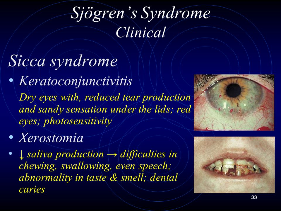 33 Sjögren's Syndrome Clinical Sicca syndrome Keratoconjunctivitis Dry eyes with, reduced tear production and sandy sensation under the lids; red eyes
