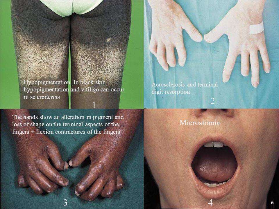 47 MCTD – Common clinical features Raynaud's phenomenon96%74% Arthralgia/arthritis96%68% Esophageal hypomotility66%9% Pulmonary dysfunction66%rare Swollen hands66%45% Myositis51%2% Rash53%13% Leukopenia53%9% Sclerodactyly49%11% Pleuritis/pericarditis43%19% Pulmonary hypertension23%rare Cumulatively At presentation