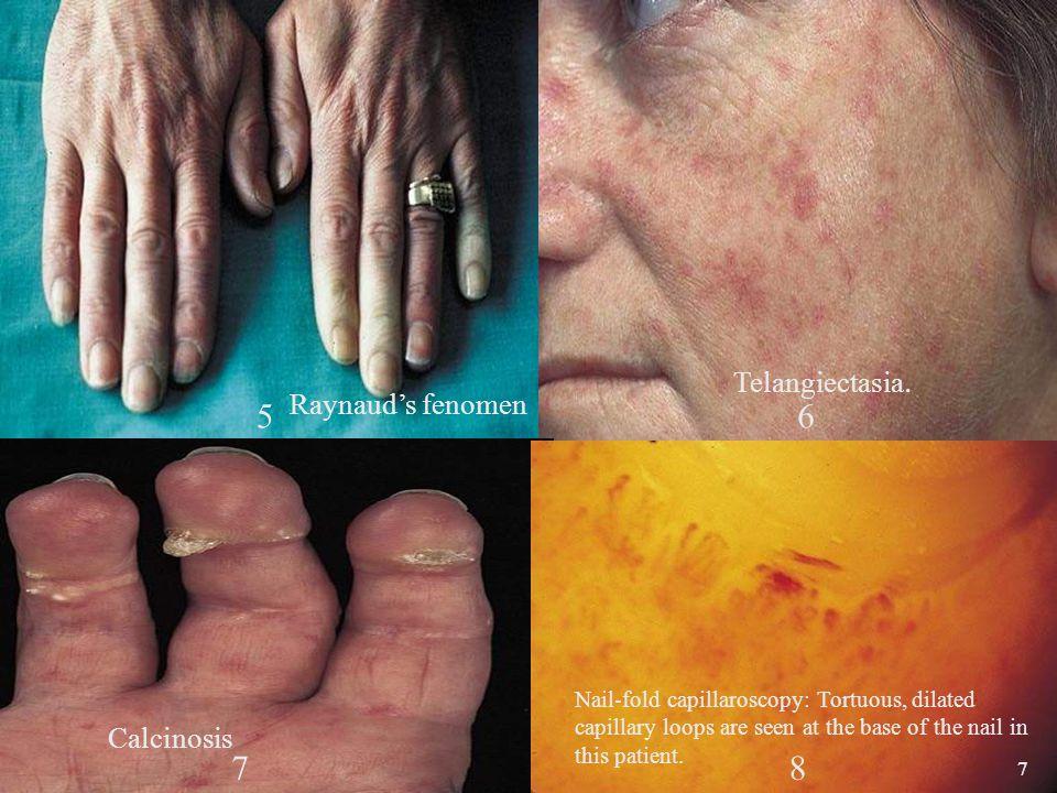 38 Etiology/Pathogenesis Genetics: HLA-DR3, HLA-B8, DQ-2 * Sex hormones Virus infection ** Epstein Barr virus Retrovirus: HIV, HTLV-I Coxsackievirus * Price EJ, et al.