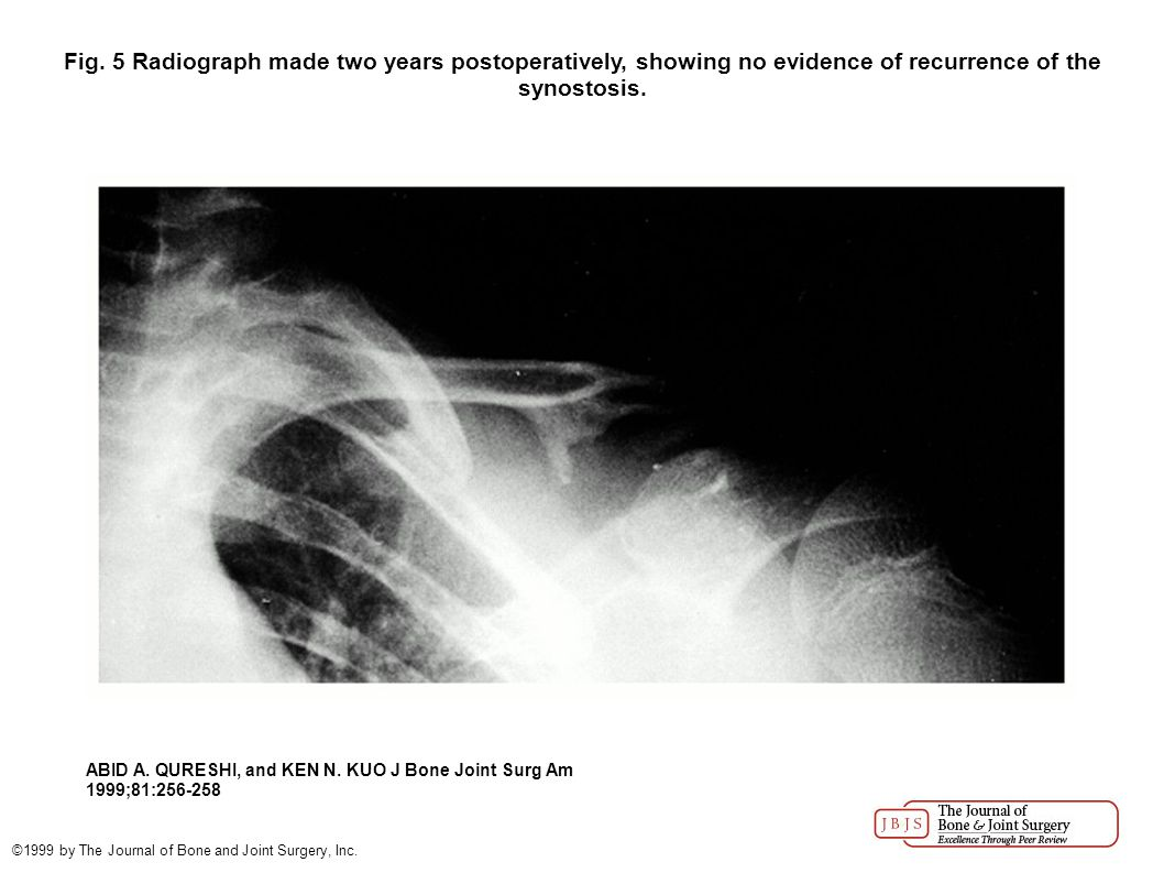Fig. 5 Radiograph made two years postoperatively, showing no evidence of recurrence of the synostosis. ABID A. QURESHI, and KEN N. KUO J Bone Joint Su