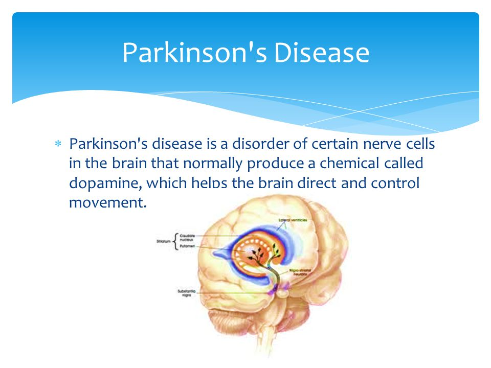  Parkinson s disease is a disorder of certain nerve cells in the brain that normally produce a chemical called dopamine, which helps the brain direct and control movement.