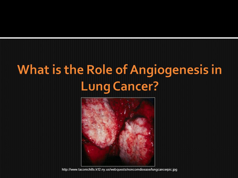 http://www.taconichills.k12.ny.us/webquests/noncomdisease/lungcancerpic.jpg