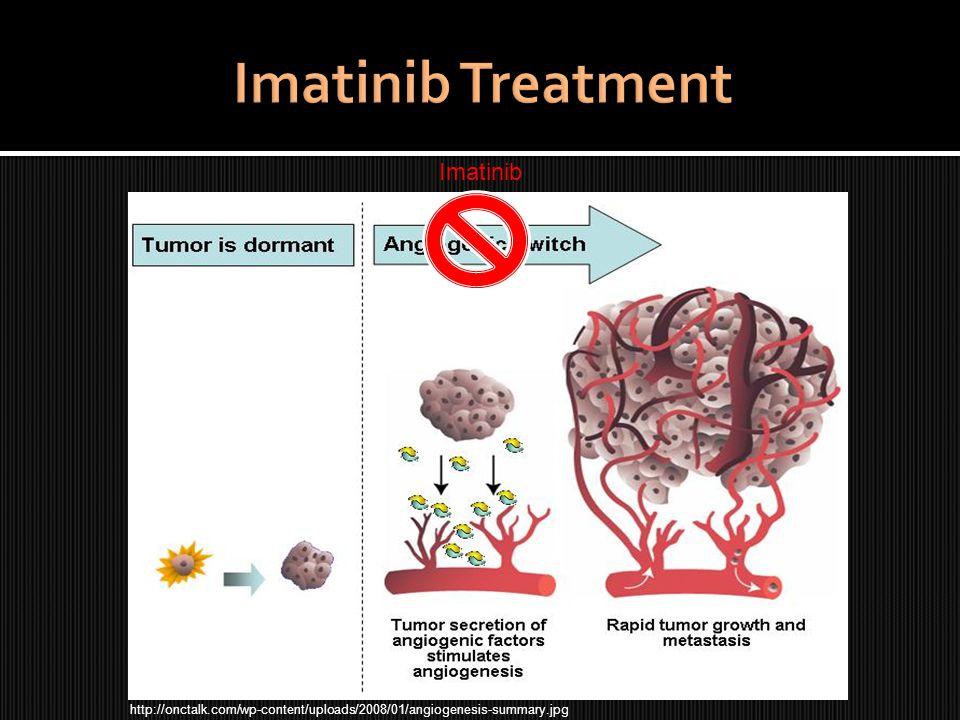 http://onctalk.com/wp-content/uploads/2008/01/angiogenesis-summary.jpg Imatinib
