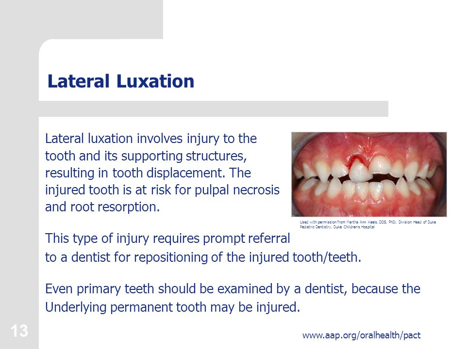 13 www.aap.org/oralhealth/pact Lateral Luxation Lateral luxation involves injury to the tooth and its supporting structures, resulting in tooth displacement.