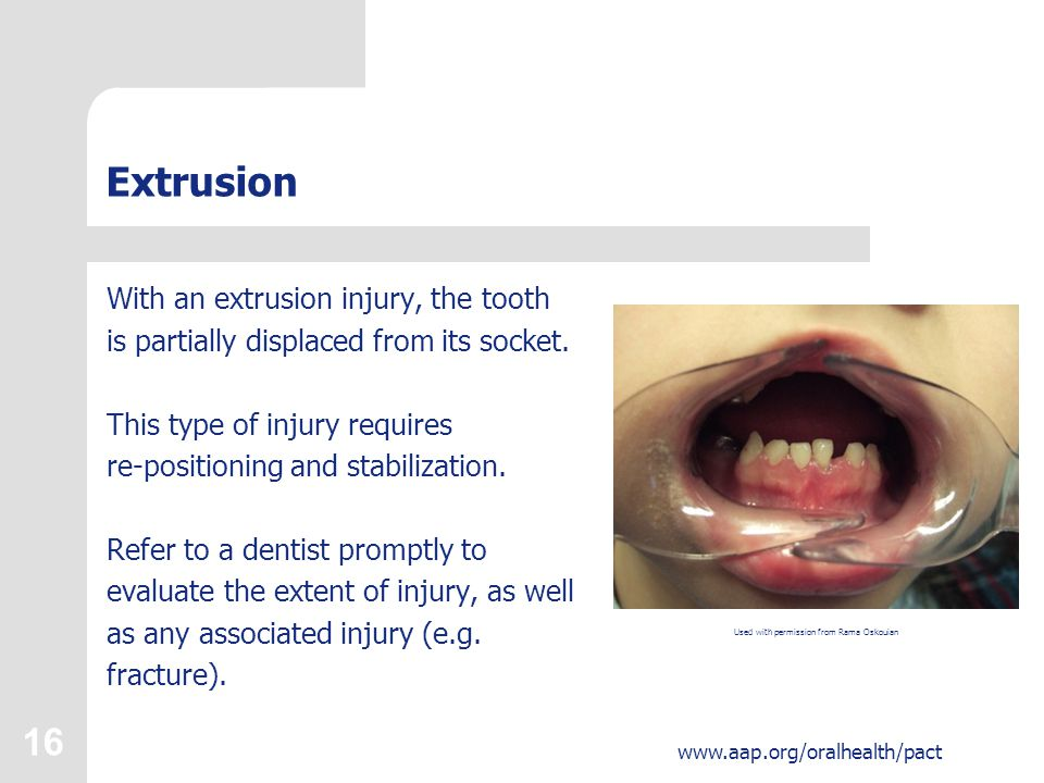 16 www.aap.org/oralhealth/pact Extrusion With an extrusion injury, the tooth is partially displaced from its socket.