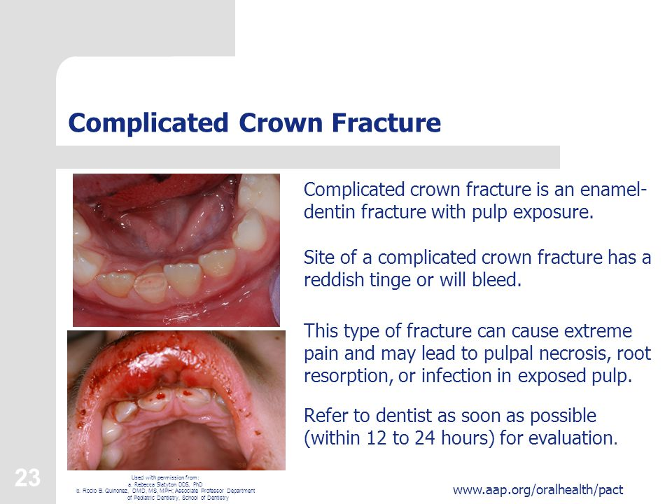 23 www.aap.org/oralhealth/pact Complicated Crown Fracture Complicated crown fracture is an enamel- dentin fracture with pulp exposure.