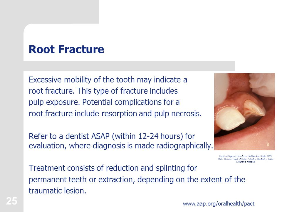 26 www.aap.org/oralhealth/pact Complications and Consequences of Tooth Injury There are many possible consequences of an oral injury: Pain, which can be severe.