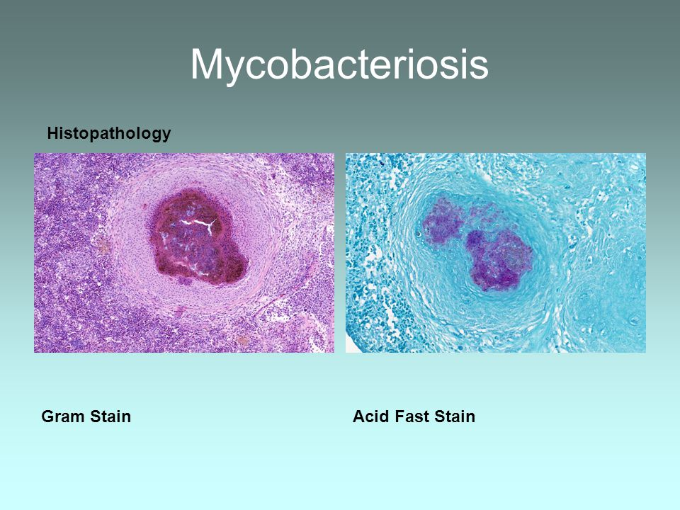 Mycobacteriosis Gram Stain Acid Fast Stain Histopathology