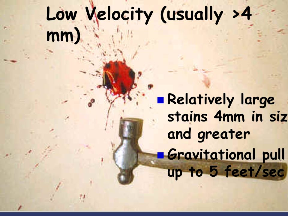 Low Velocity (usually >4 mm) Relatively large stains 4mm in size and greater Gravitational pull up to 5 feet/sec