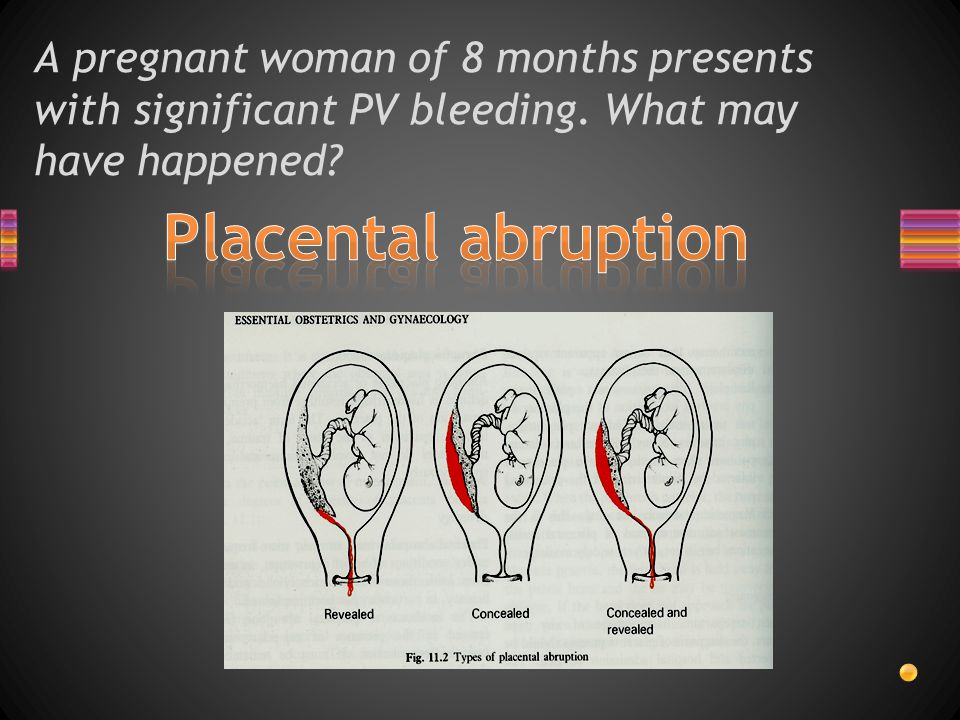 A pregnant woman of 8 months presents with significant PV bleeding. What may have happened