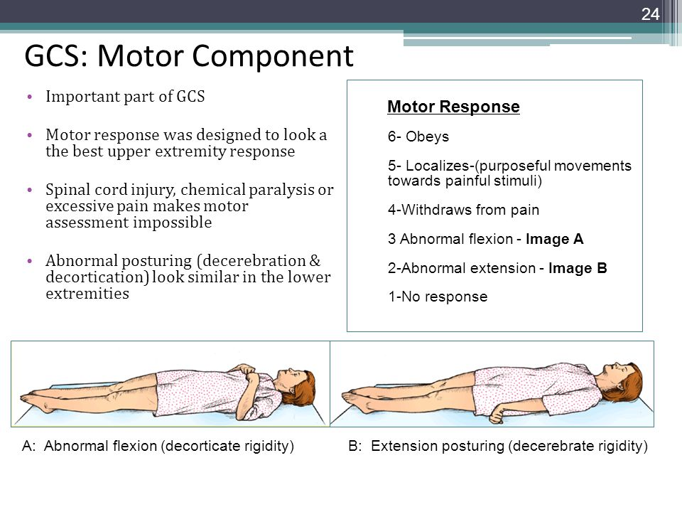 GCS: Motor Component Important part of GCS Motor response was designed to look a the best upper extremity response Spinal cord injury, chemical paraly