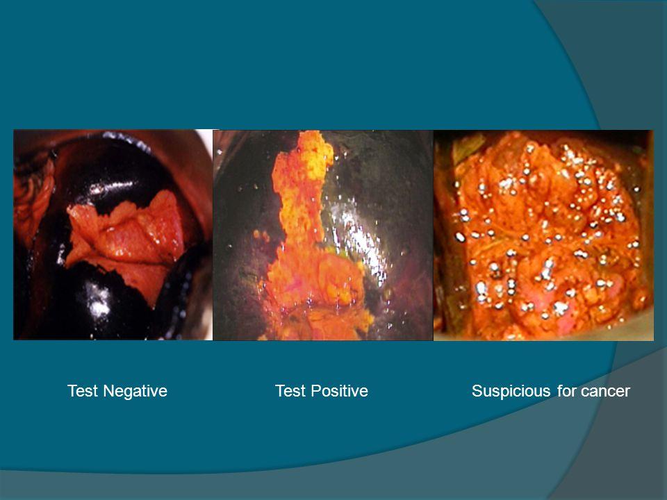 Test NegativeTest PositiveSuspicious for cancer
