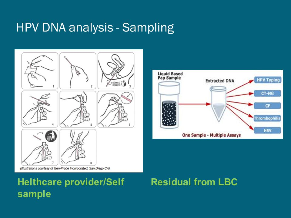 HPV DNA analysis - Sampling Helthcare provider/Self sample Residual from LBC