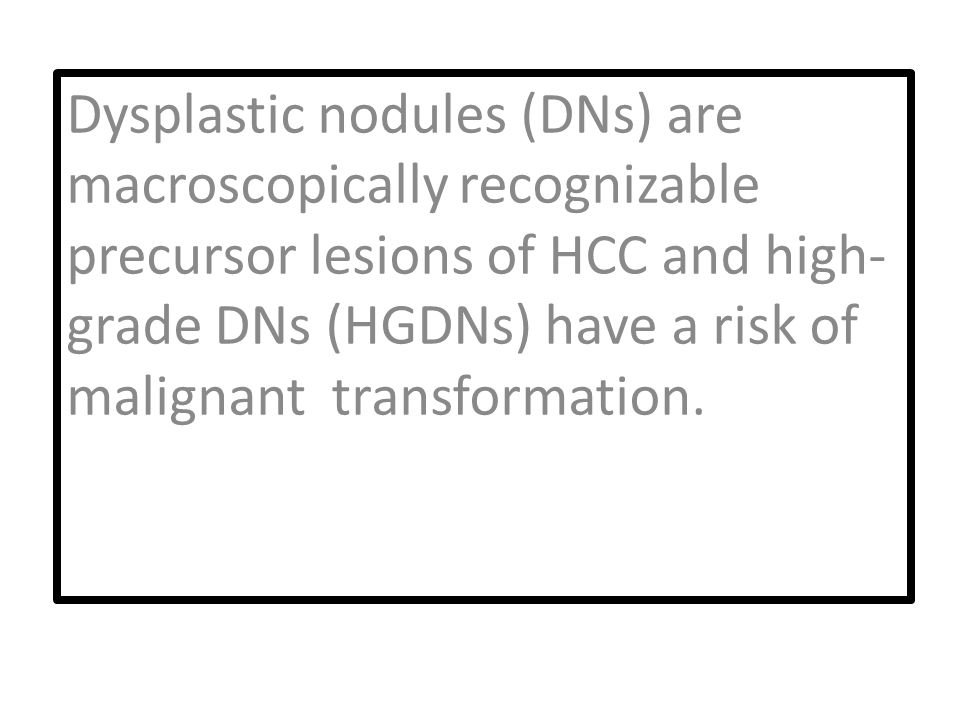 Dysplastic nodules (DNs) are macroscopically recognizable precursor lesions of HCC and high- grade DNs (HGDNs) have a risk of malignant transformation.
