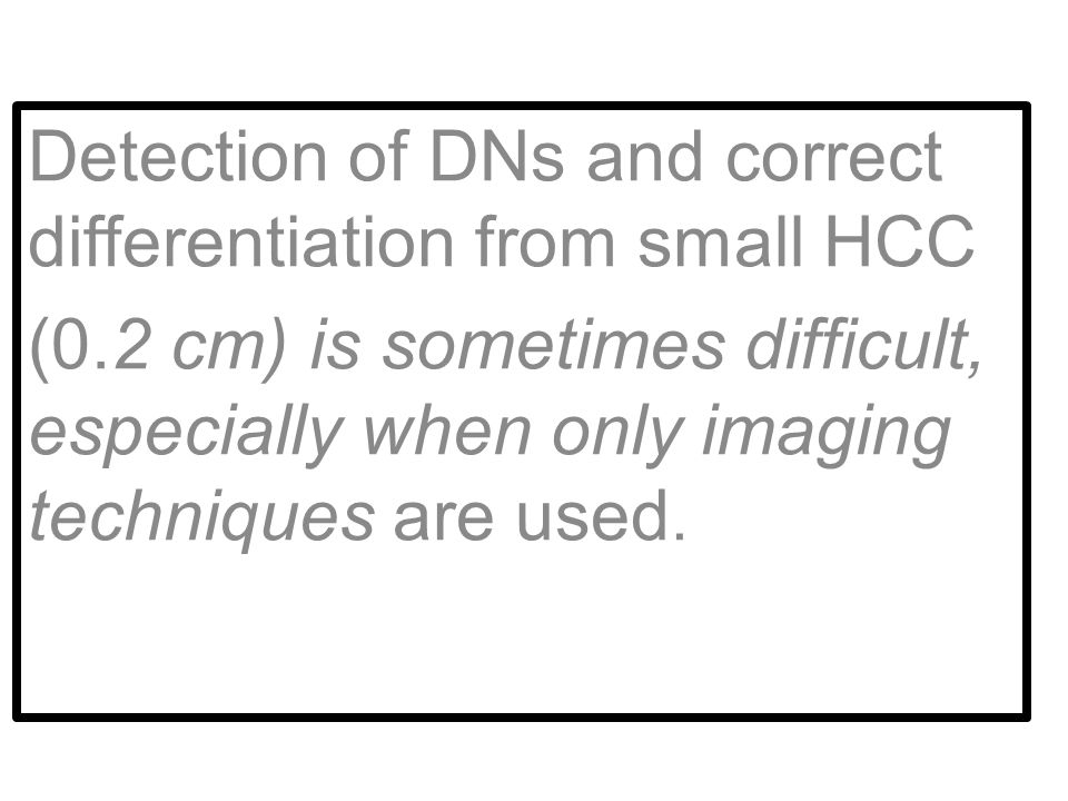 Detection of DNs and correct differentiation from small HCC (0.2 cm) is sometimes difficult, especially when only imaging techniques are used.