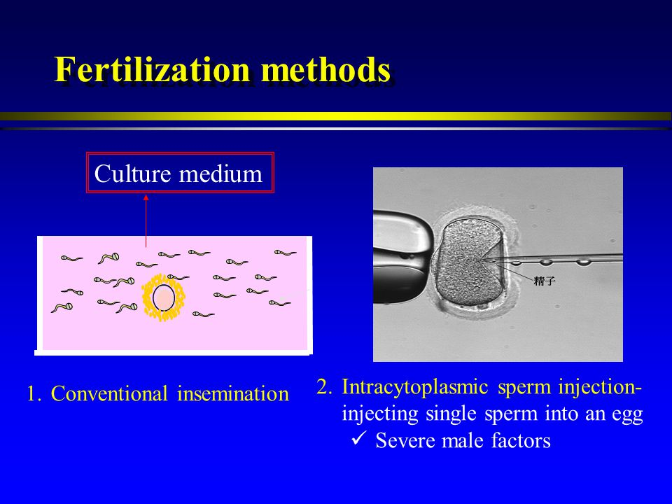 Fertilization methods Culture medium 1.Conventional insemination 2.Intracytoplasmic sperm injection- injecting single sperm into an egg Severe male fa