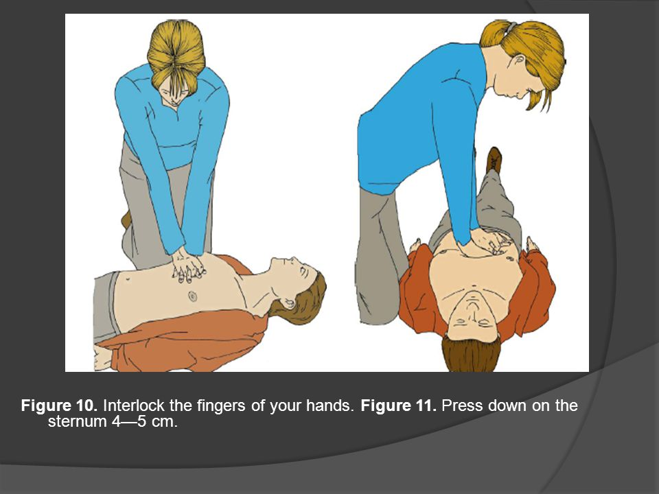 Figure 10. Interlock the fingers of your hands. Figure 11. Press down on the sternum 4—5 cm.
