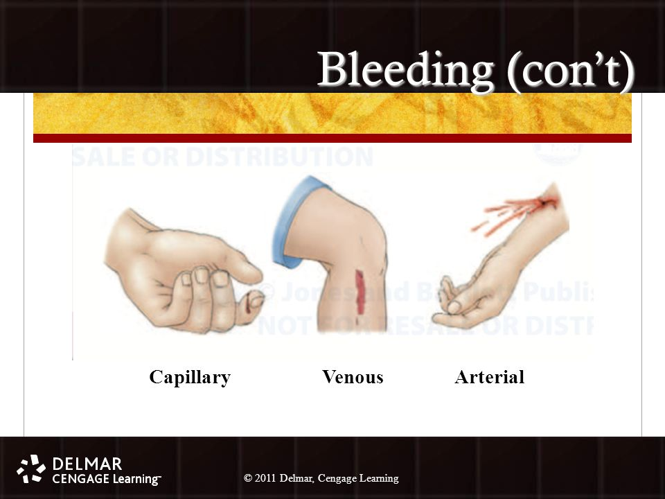 © 2010 Delmar, Cengage Learning 33 © 2011 Delmar, Cengage Learning Bleeding (con't) Capillary Venous Arterial