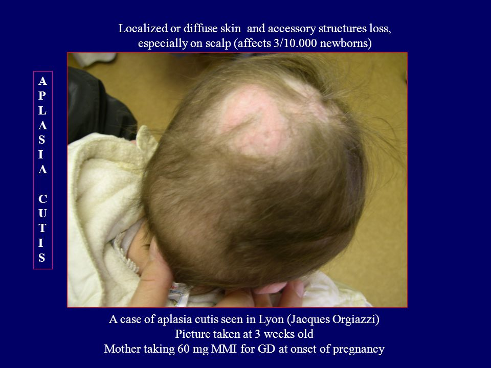 A case of aplasia cutis seen in Lyon (Jacques Orgiazzi) Picture taken at 3 weeks old Mother taking 60 mg MMI for GD at onset of pregnancy APLASIACUTISAPLASIACUTIS Localized or diffuse skin and accessory structures loss, especially on scalp (affects 3/10.000 newborns)