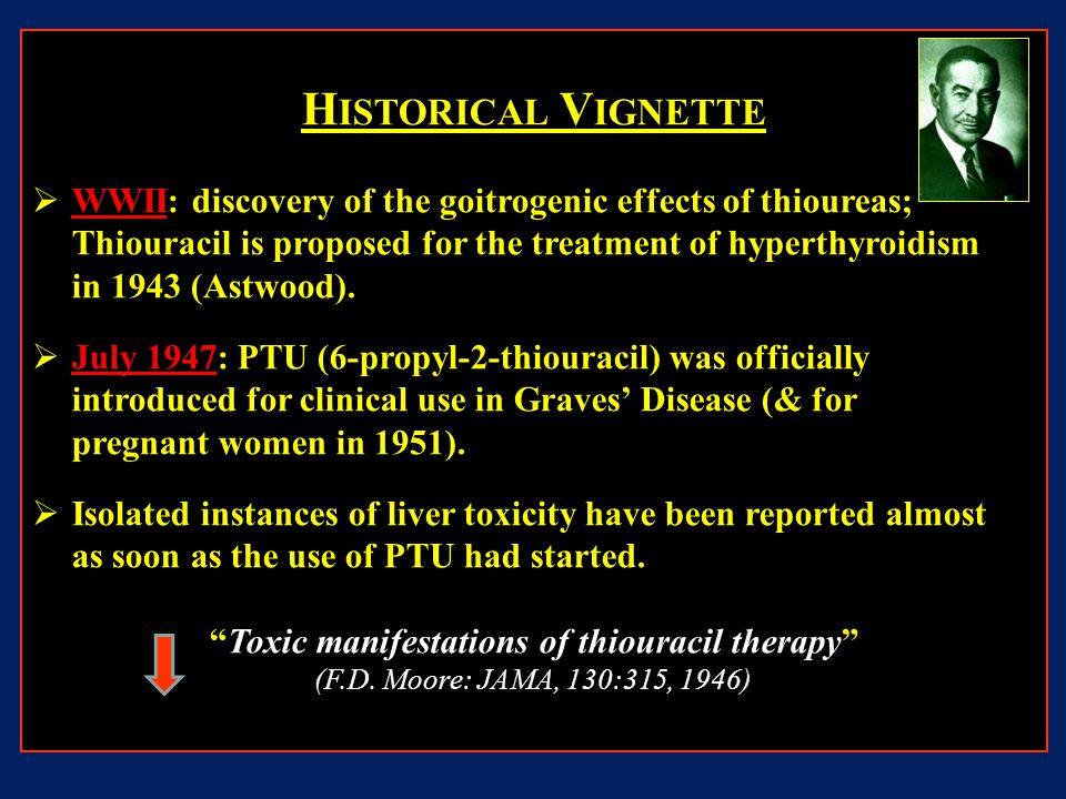 H ISTORICAL V IGNETTE  WWII: discovery of the goitrogenic effects of thioureas; Thiouracil is proposed for the treatment of hyperthyroidism in 1943 (Astwood).
