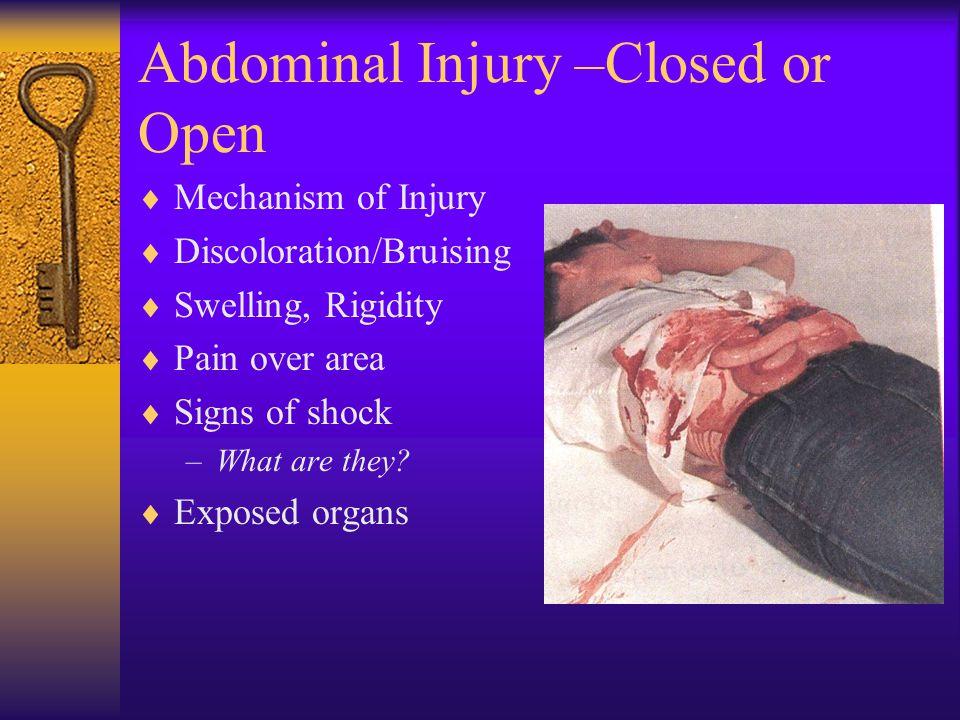 Abdominal & Genitourinary Injury EMT 100