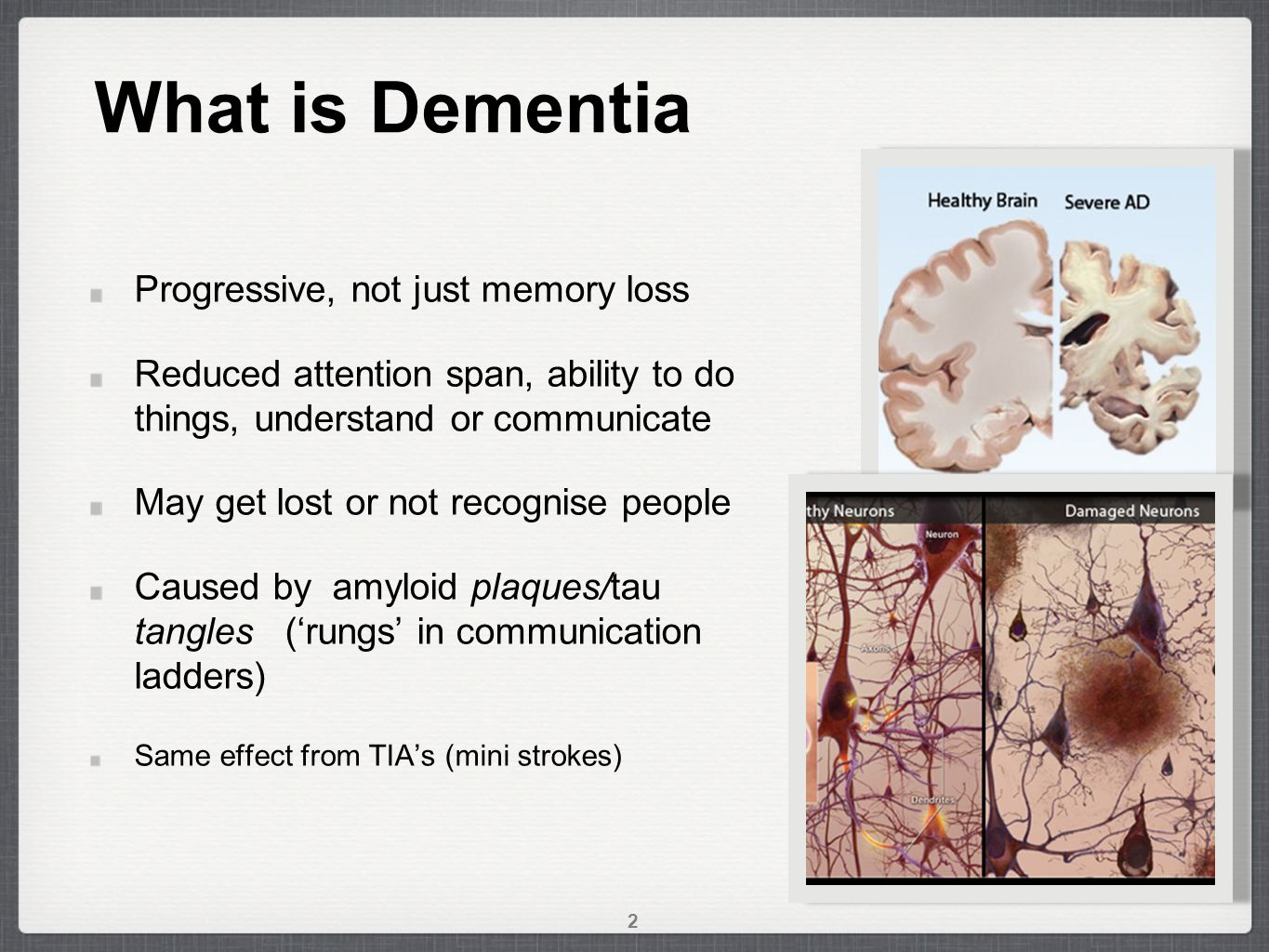 What is Dementia Progressive, not just memory loss Reduced attention span, ability to do things, understand or communicate May get lost or not recognise people Caused by amyloid plaques/tau tangles ('rungs' in communication ladders) Same effect from TIA's (mini strokes) 2