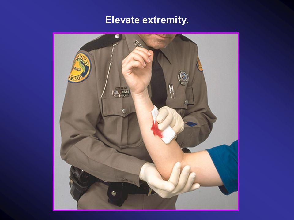 Elevate extremity.