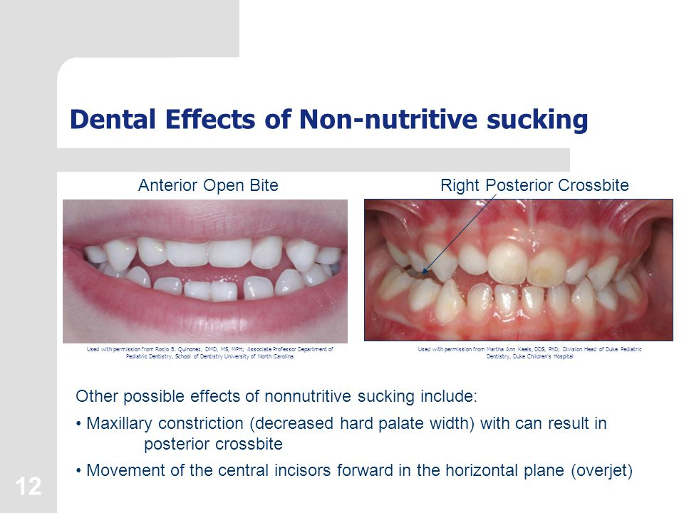 12 Dental Effects of Non-nutritive sucking Anterior Open BiteRight Posterior Crossbite Other possible effects of nonnutritive sucking include: Maxillary constriction (decreased hard palate width) with can result in posterior crossbite Movement of the central incisors forward in the horizontal plane (overjet) Used with permission from Martha Ann Keels, DDS, PhD; Division Head of Duke Pediatric Dentistry, Duke Children s Hospital Used with permission from Rocio B.