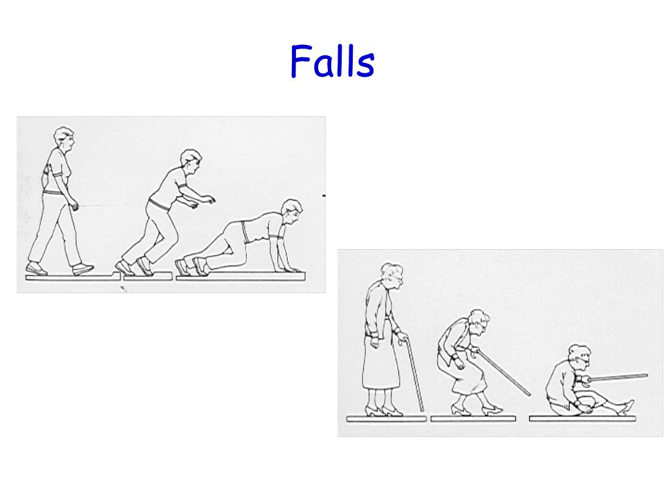 Issues for discussion Relative versus absolute fracture risk Calculate fracture risk particularly for: – Primary prevention of fractures – Where you are uncertain about fracture risk – Where you want to show patients that treatment is unnecessary – To estimate drug benefit versus drug risk