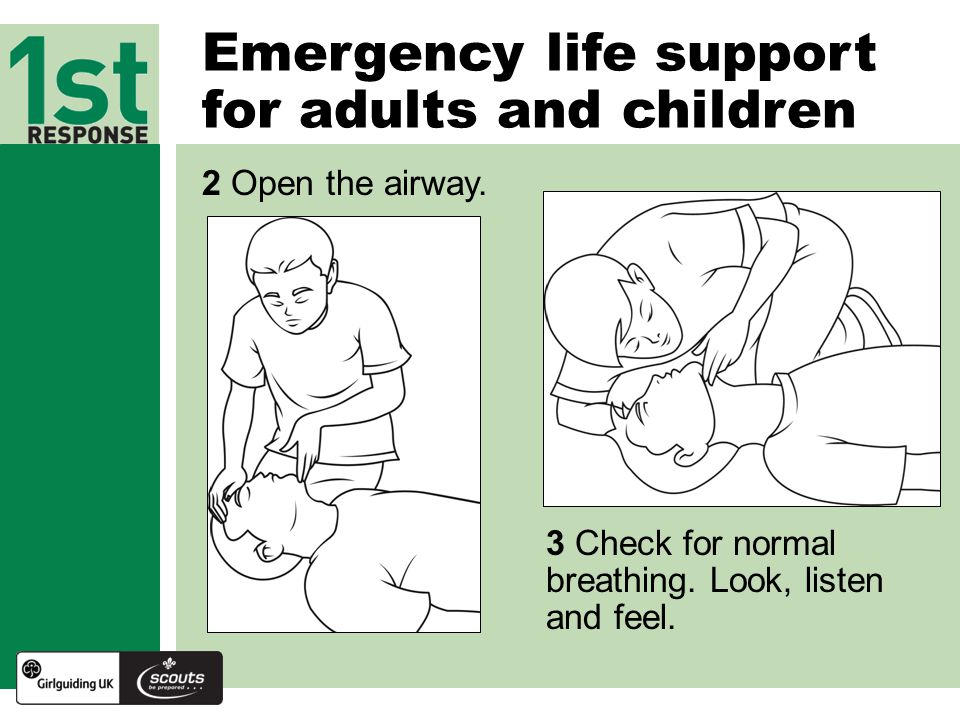 Emergency life support for adults and children 2 Open the airway.