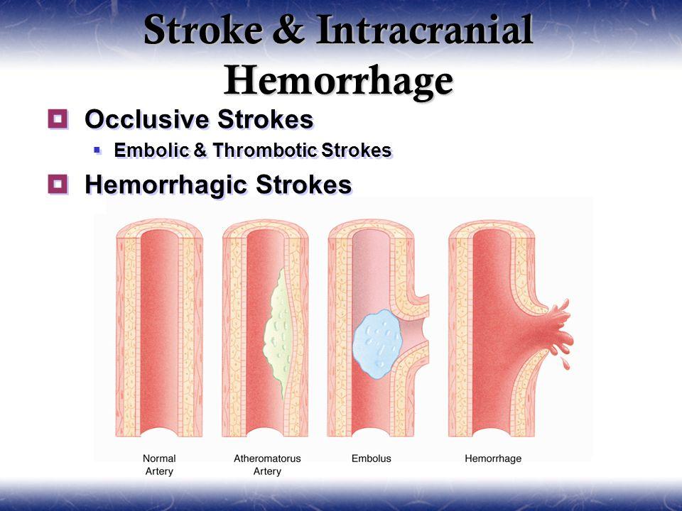 Stroke & Intracranial Hemorrhage  Occlusive Strokes  Embolic & Thrombotic Strokes  Hemorrhagic Strokes  Occlusive Strokes  Embolic & Thrombotic Strokes  Hemorrhagic Strokes