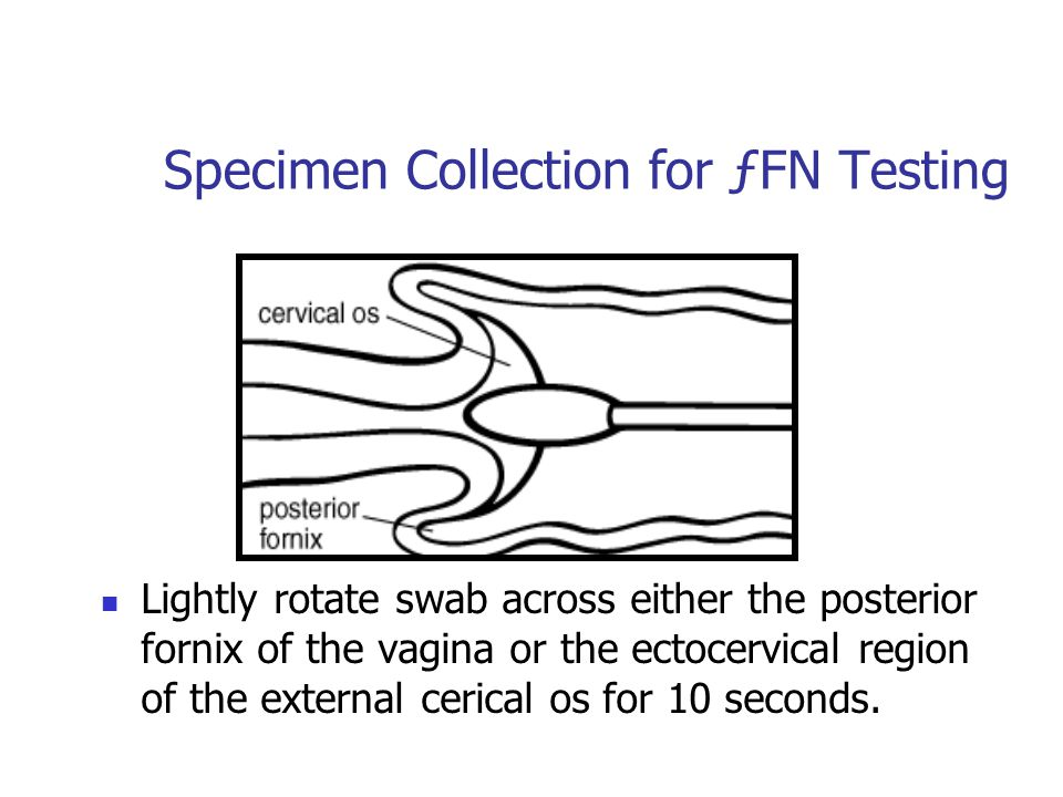 Specimen Collection for ƒFN Testing Lightly rotate swab across either the posterior fornix of the vagina or the ectocervical region of the external ce