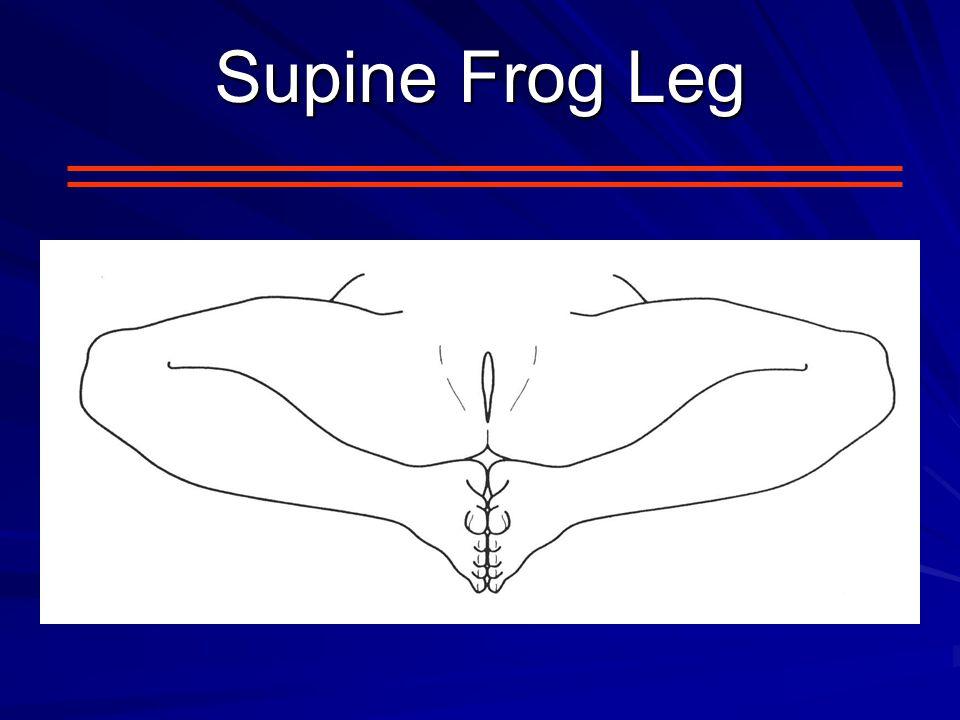Supine Frog Leg