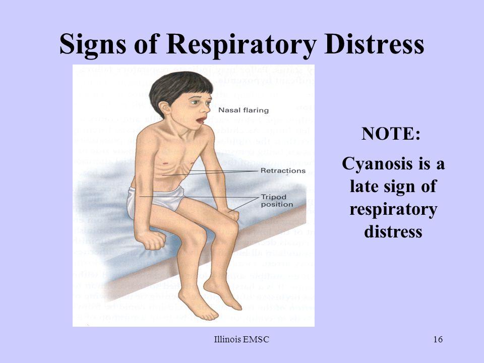 Illinois EMSC16 Signs of Respiratory Distress NOTE: Cyanosis is a late sign of respiratory distress