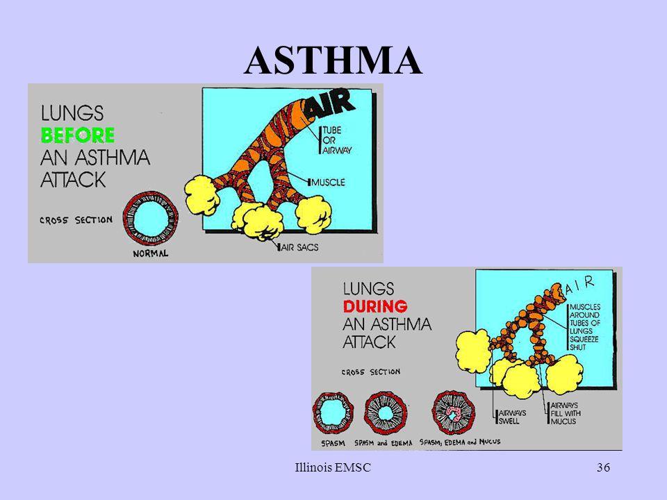 Illinois EMSC36 ASTHMA