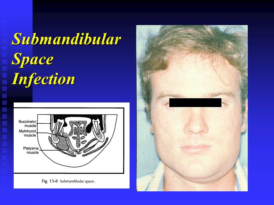 Submandibular Space Infection