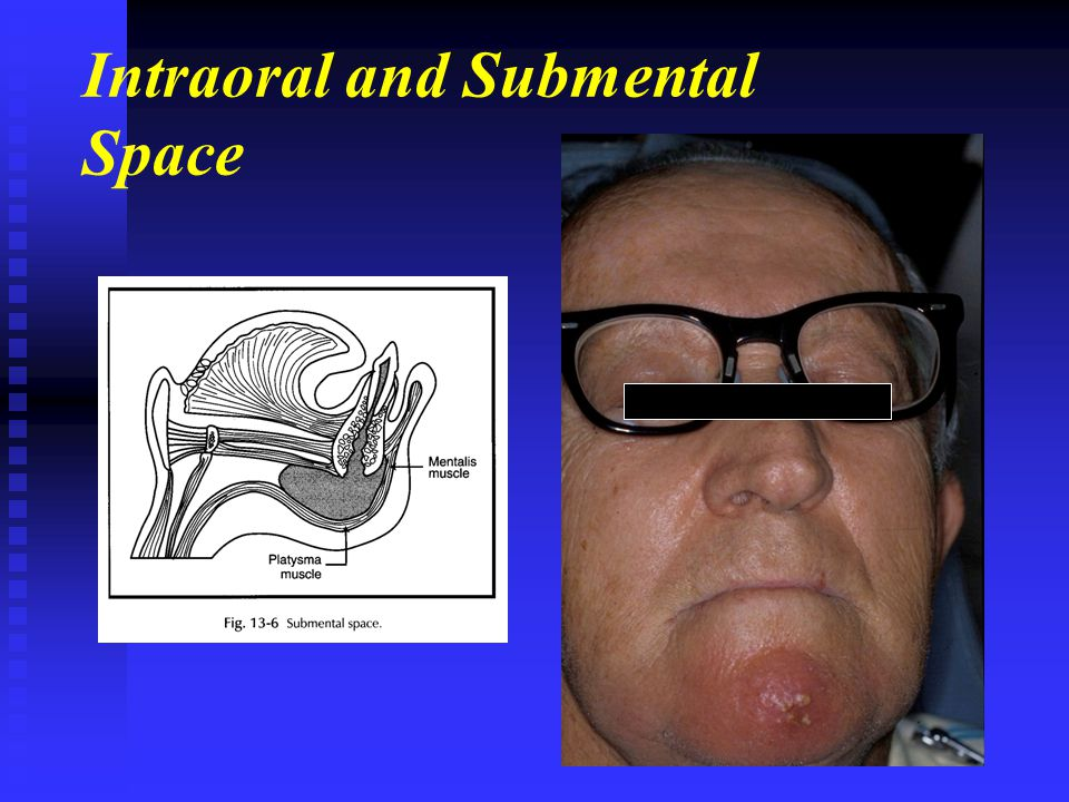 Intraoral and Submental Space