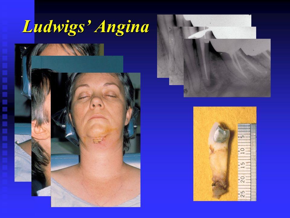 Ludwigs' Angina