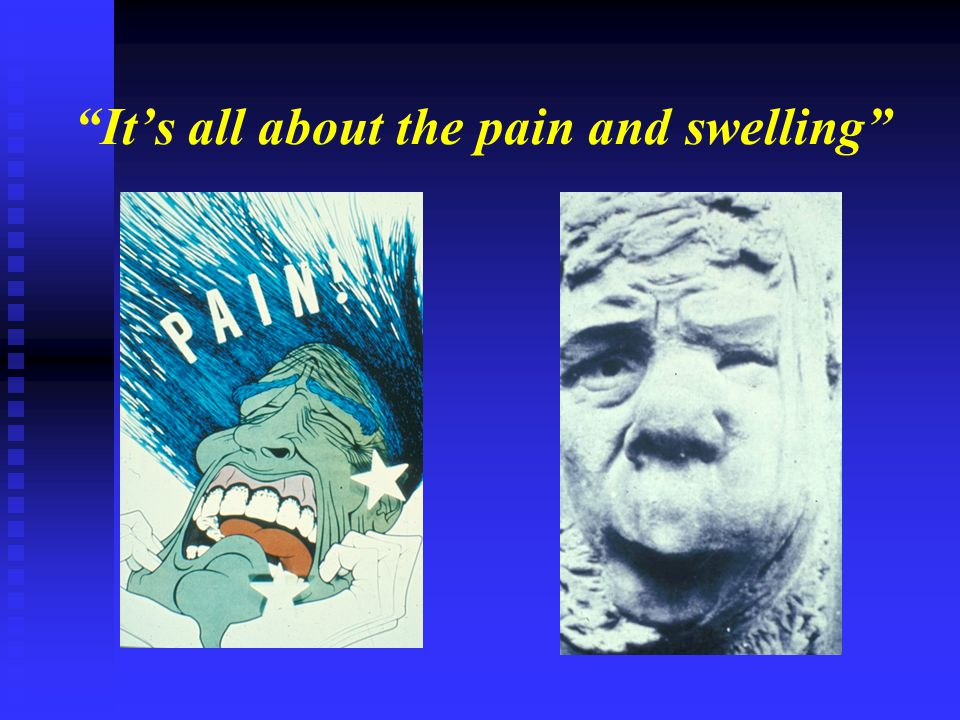 """""""It's all about the pain and swelling"""""""