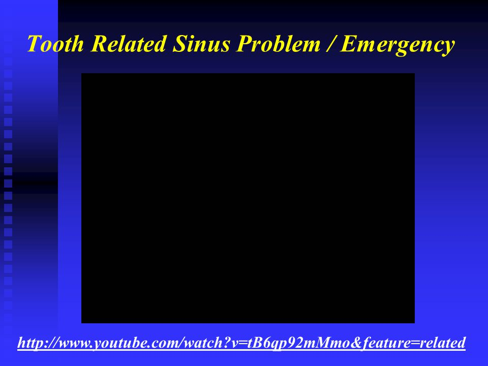 Tooth Related Sinus Problem / Emergency http://www.youtube.com/watch?v=tB6qp92mMmo&feature=related