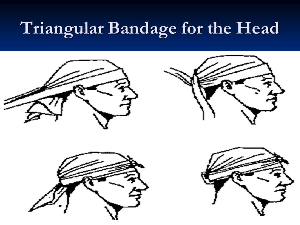 26 Triangular Bandage for the Head