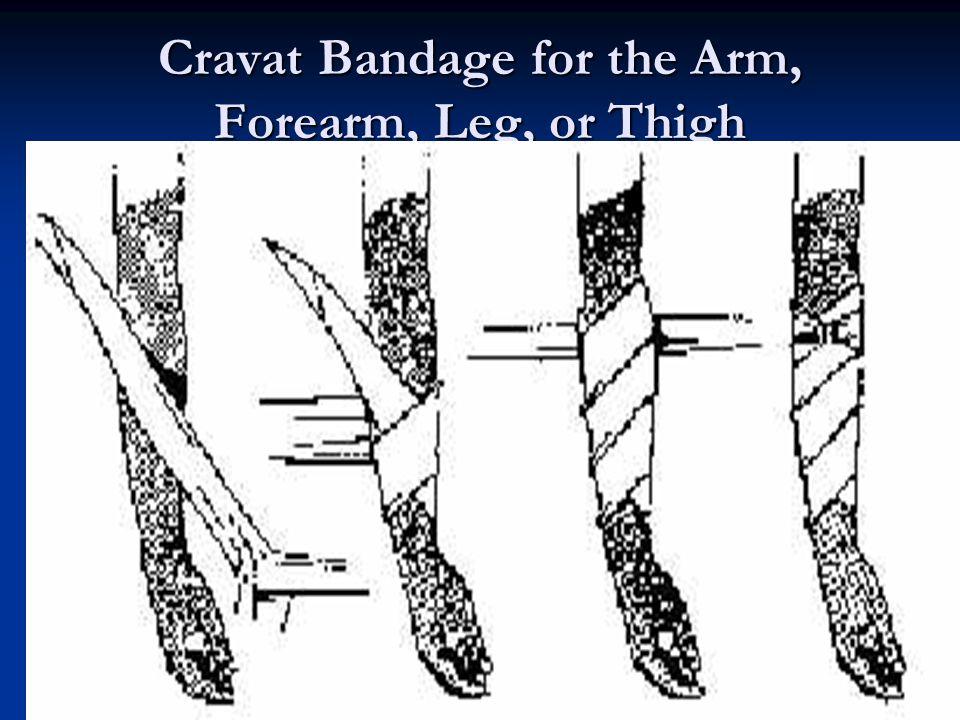 29 Cravat Bandage for the Arm, Forearm, Leg, or Thigh