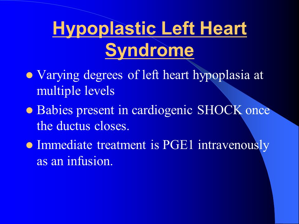 Hypoplastic Left Heart Syndrome Varying degrees of left heart hypoplasia at multiple levels Babies present in cardiogenic SHOCK once the ductus closes