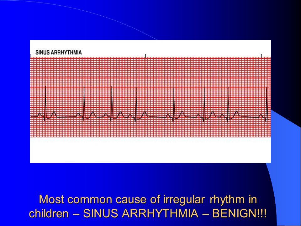 Most common cause of irregular rhythm in children – SINUS ARRHYTHMIA – BENIGN!!!